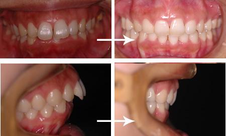 出っ歯、上顎前突、歯ぐき(歯列矯正)|大阪の矯正歯科ウメダデンタル ...